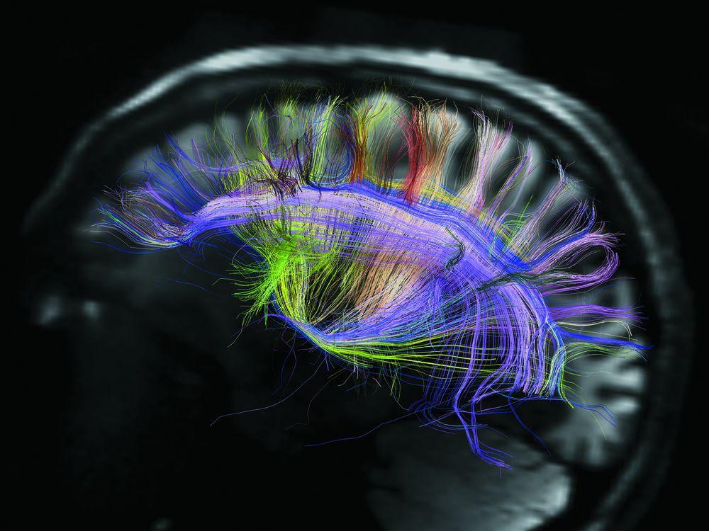 beautiful-animal-brains.jpg