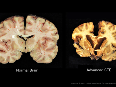 The degenerative disease, chronic traumatic encephalopathy or CTE, is common in football players, boxers, veterans and others exposed to head trauma.