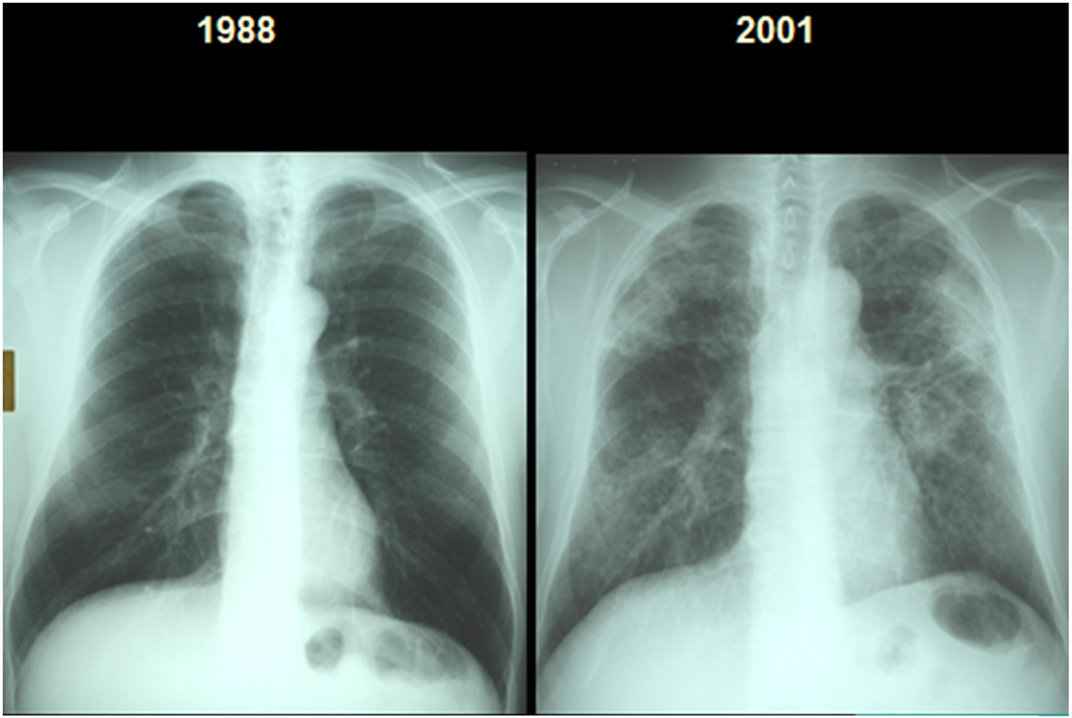 Why Black Lung Disease Is Deadlier Than Ever Before