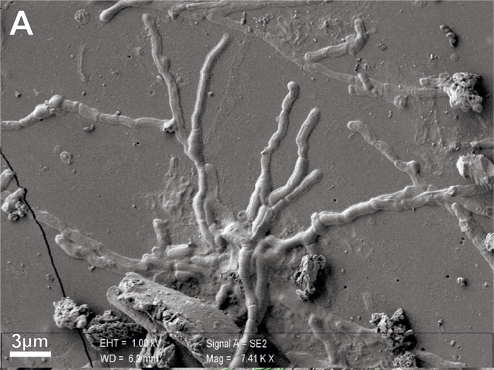Two images of grey backgrounds with webs of small lines that look like vessels or roots of a plant; these are brain cells, which are thing elongated cells