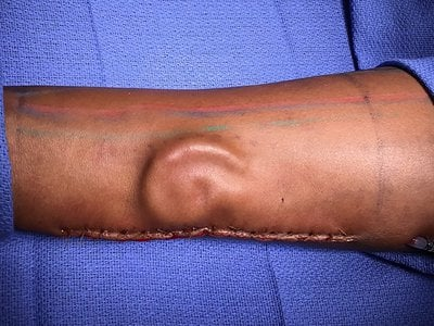 U.S. Army surgeons grew an ear in a soldier's forearm before transplanting it to the head. The solider had lost her own ear during a car accident.