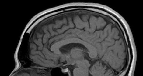 Researchers have found neurological abnormalities