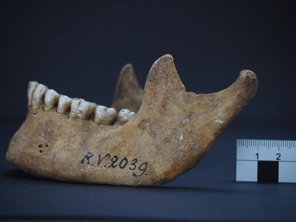 A photograph of human remains, a lower jawbone labeled RV 2039