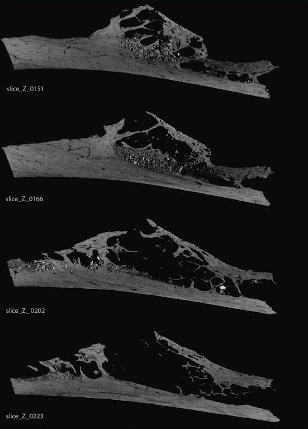 Evidence for the Oldest Ever Bone Tumor Was Just Found in a Neanderthal Fossil