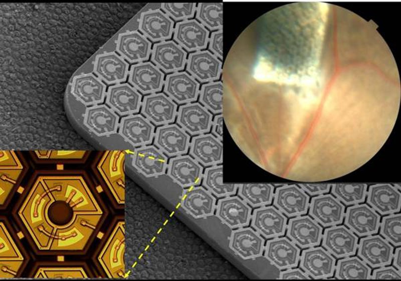 Could This Bionic Vision System Help Restore Sight?