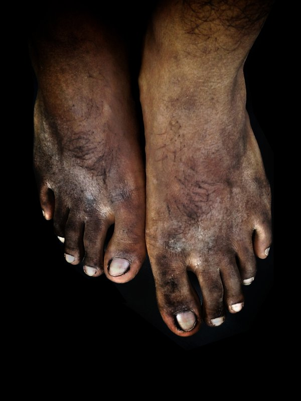 Hard Feet thumbnail