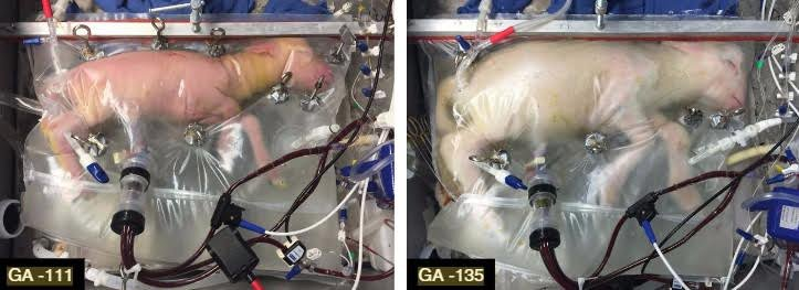 Will This Artificial Womb One Day Improve the Care of Preemies?