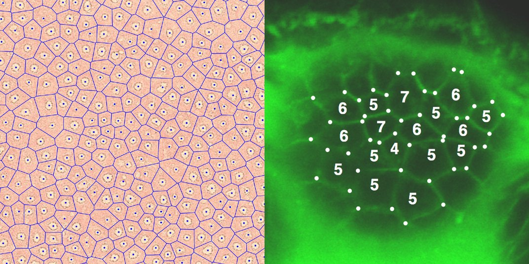 Fairy circles in the Namibian desert (left) and microscopic skin cells (right) by Laura Petersen/OIST