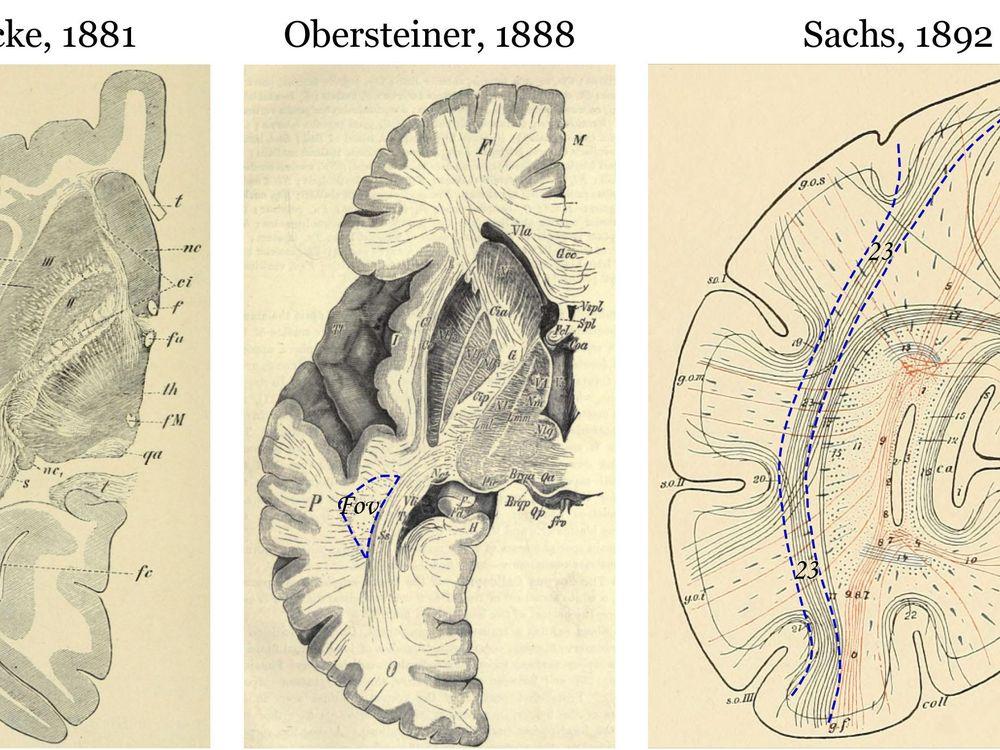 wernicke missing brain part
