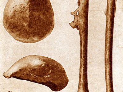 Eugene Dubois discovered the first hominid fossils in Indonesia when he unearthed Homo erectus bones at Trinil in 1891 and 1892.