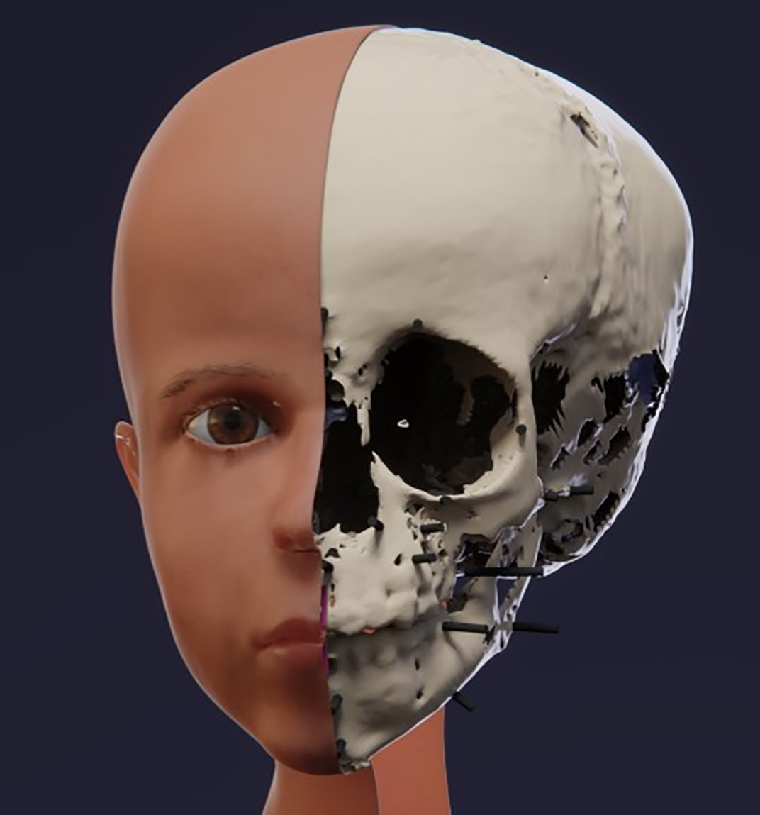 3-D Reconstruction Reveals the Face of an Ancient Egyptian Toddler
