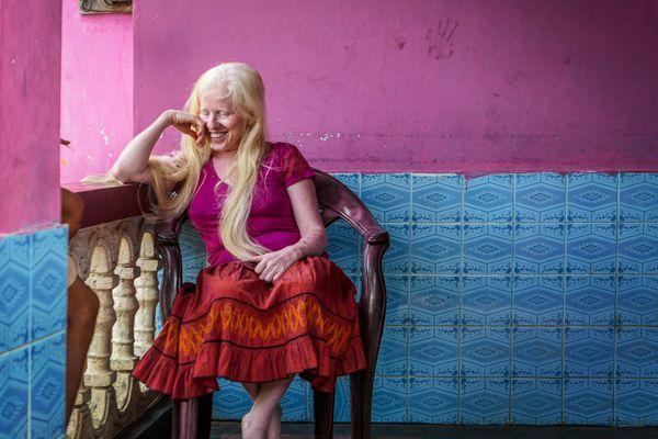 Albino girl thumbnail