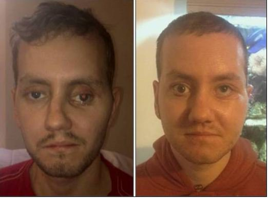 How 3D Printing Helped Repair This Man's Face