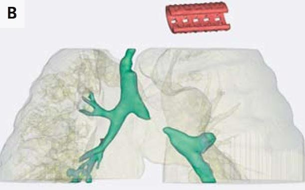 Doctors Use a Dissolvable 3D-Printed Tracheal Splint to Save a