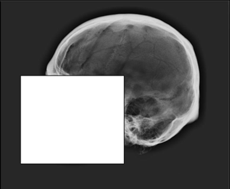 Skull release image