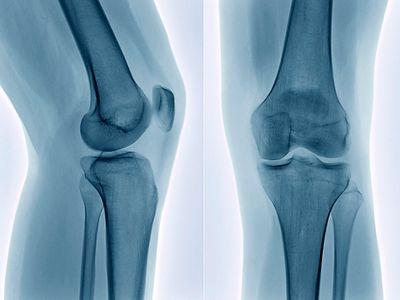 An X-ray of the knee bone.