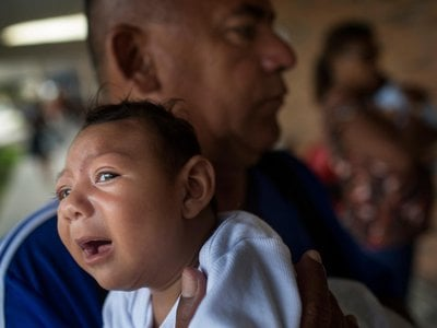 Thousands of infants born in Brazil have been reported to show signs of microcephaly, like Alice pictured here being comforted by her father.