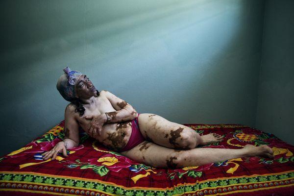 Vitiligo: Mercedes thumbnail