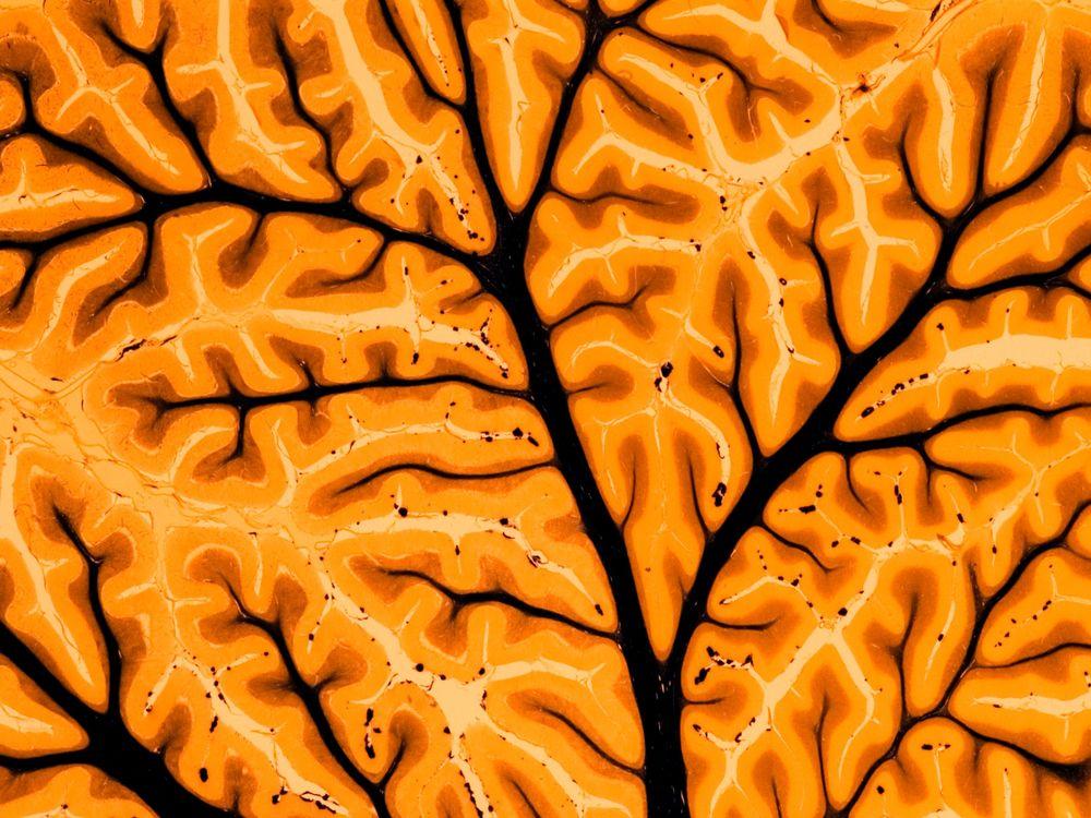 brain stimulation.jpg
