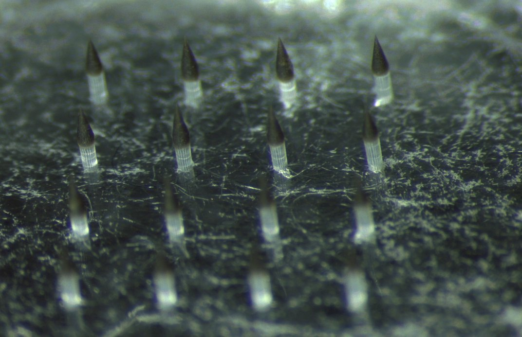 This Spiky Patch Could Invisibly Record Vaccination History Under Skin
