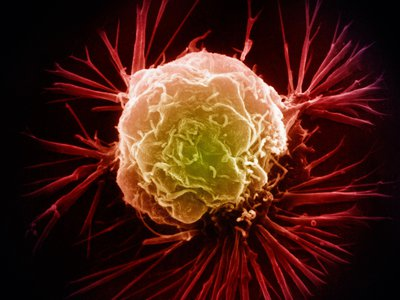 The way cancer cells process zinc might help scientists identify a new biomarker.