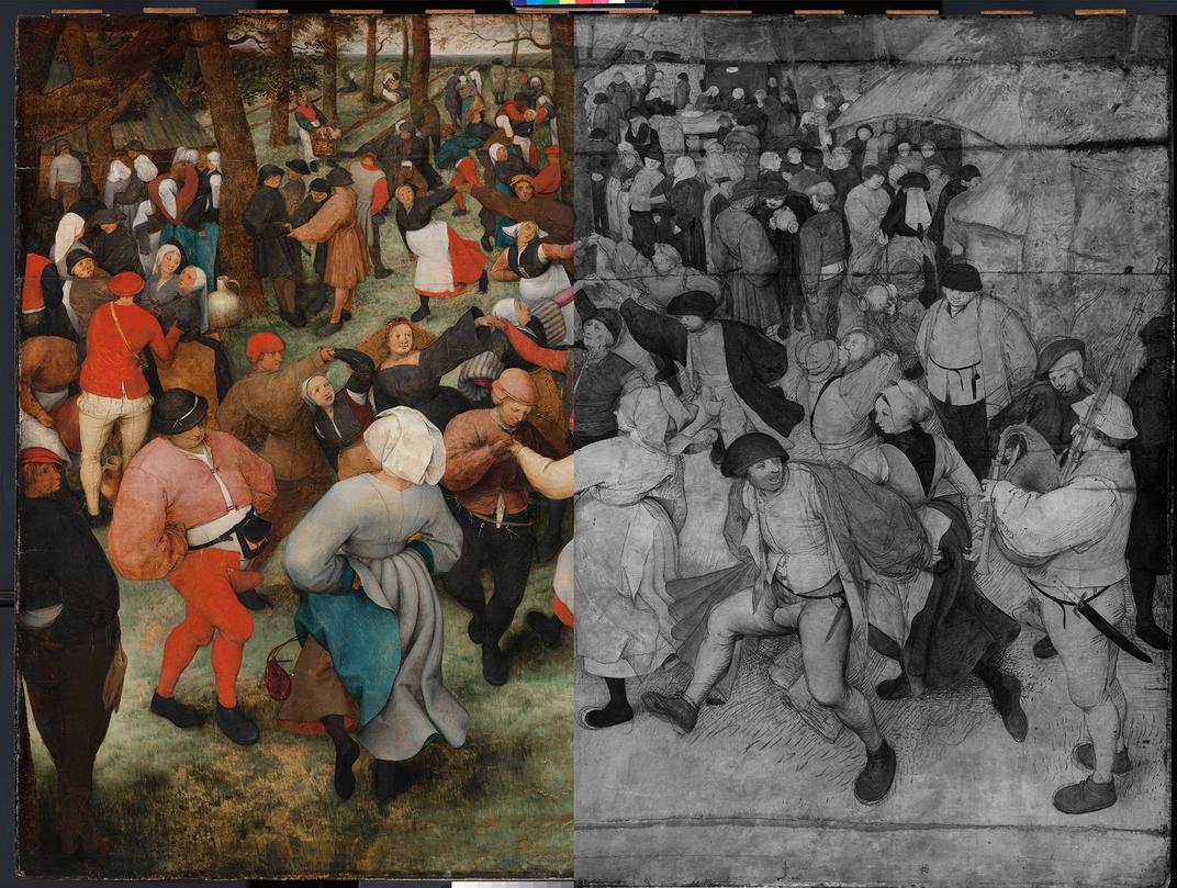 Detroit Exhibit Celebrates Bruegel's 'The Wedding Dance' and Its Controversial Codpieces