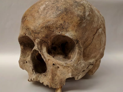 Skeletal remains showing evidence of leprosy from the Odense St. Jørgen cemetery in Denmark, which was established in 1270 and existed until 1560.