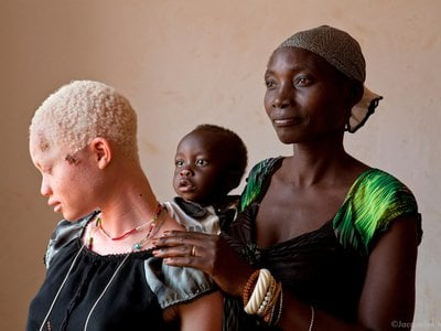"""Angel Salvatory, 17, left, poses with her mother Bestida, right, and one-year-old brother Ezekial, at the Kabanga Protectorate Center. People with albinism are in danger from a black market in albino body parts driven by traditional beliefs, black magic and witch doctors. Bestida recounts how Angel's father had wanted to attack their daughter ever since she was three-months-old. """"He thought if we would take Angel to a witch doctor as a sacrifice that we could get rich,"""" says Bestida. She managed to talk him out of it for years until one day a group of men came armed with machetes. Despite surviving her father's attack, Angel died of skin cancer in 2013."""