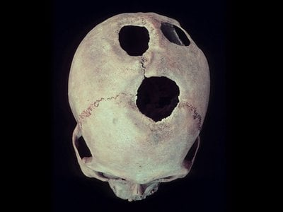 An Inca skull from the Cuzco region of Peru, showing four healed trepanations. The new review focuses on the practice in ancient China.