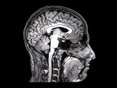 Tomova used a functional magnetic resonance imaging machine to see how participants' brains responded to images of drool-worthy food and social gatherings.