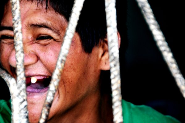 Patient in the CREMI, (Centro de Rehabilitacion de Enfermos Mentales de Iquitos). Psychiatric Hospital in Iquitos. thumbnail