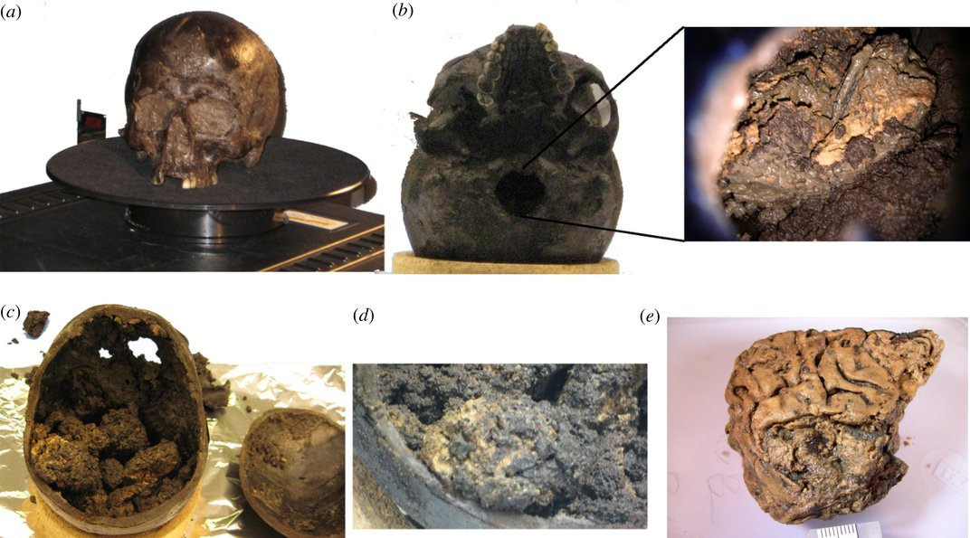 Super Resilient Protein Structures Preserved a Chunk of Brain for 2,600 Years
