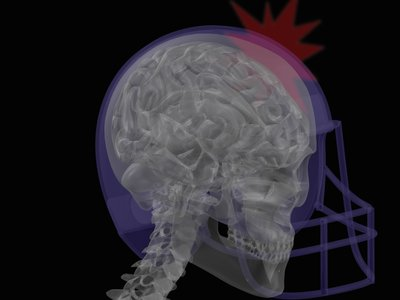 A concussion occurs when the brain impacts the inside of the skull with enough force to temporarily affect brain function.