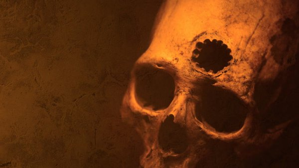Preview thumbnail for Ask Smithsonian: Do People Really Drill Holes in Their Heads?
