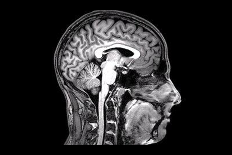 An fMRI scan of a human head in black and white. The scan is of a person's profile, facing the right edge of the photo. The scan highlights all the different organs in the head, like the brain, brain stem, mouth and nose.