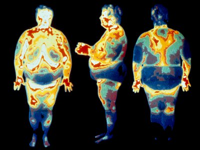 Thermogram images of an obese woman.