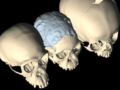 The soft spot and metopic suture are clearly visible on the skull of the young human (right) and absent in the young chimpanzee (left). Those features are present, although harder to see, in the fossil of a young Australopithecus (center).