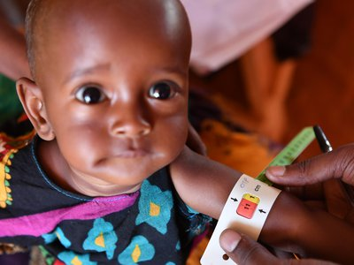 A UNICEF staff member measures the perimeter of an acute malnourished child's arm in Doolow, Somalia.
