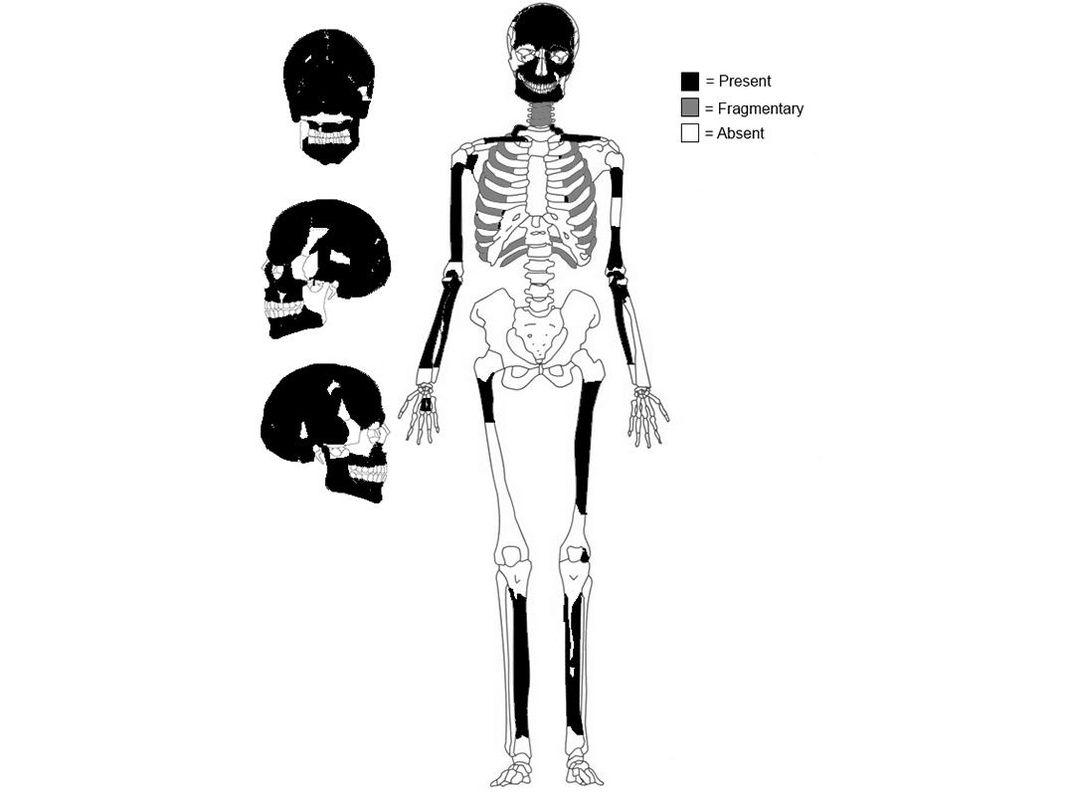 Oldest Cancer Case in Central America Discovered