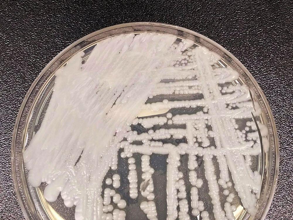 An upclose photo of a petri dish innoculated with <i>C. auris<i/>