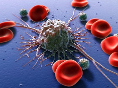 Conceptual image of Cancer cells with red blood cells