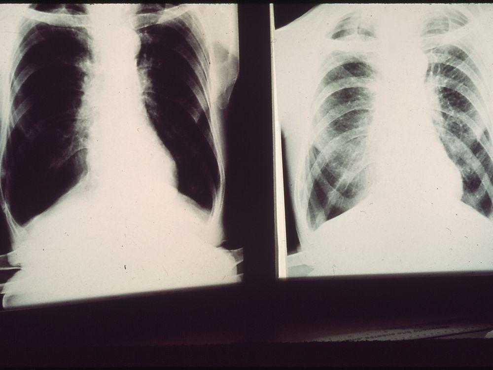 Black lung x-ray