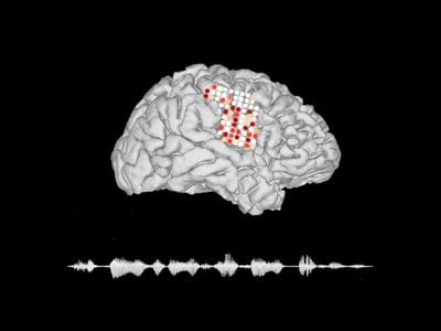 Using a brain implant with a series of electrodes, scientists can read neurological signals and translate the brain activity into spoken language.