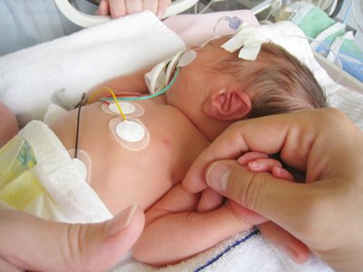A baby in the neonatal intensive care unit are often covered in patches and wires for monitoring their vital signs, but new advances mean that soon those wires could be replaced with sensors as thin as a temporary tattoo.