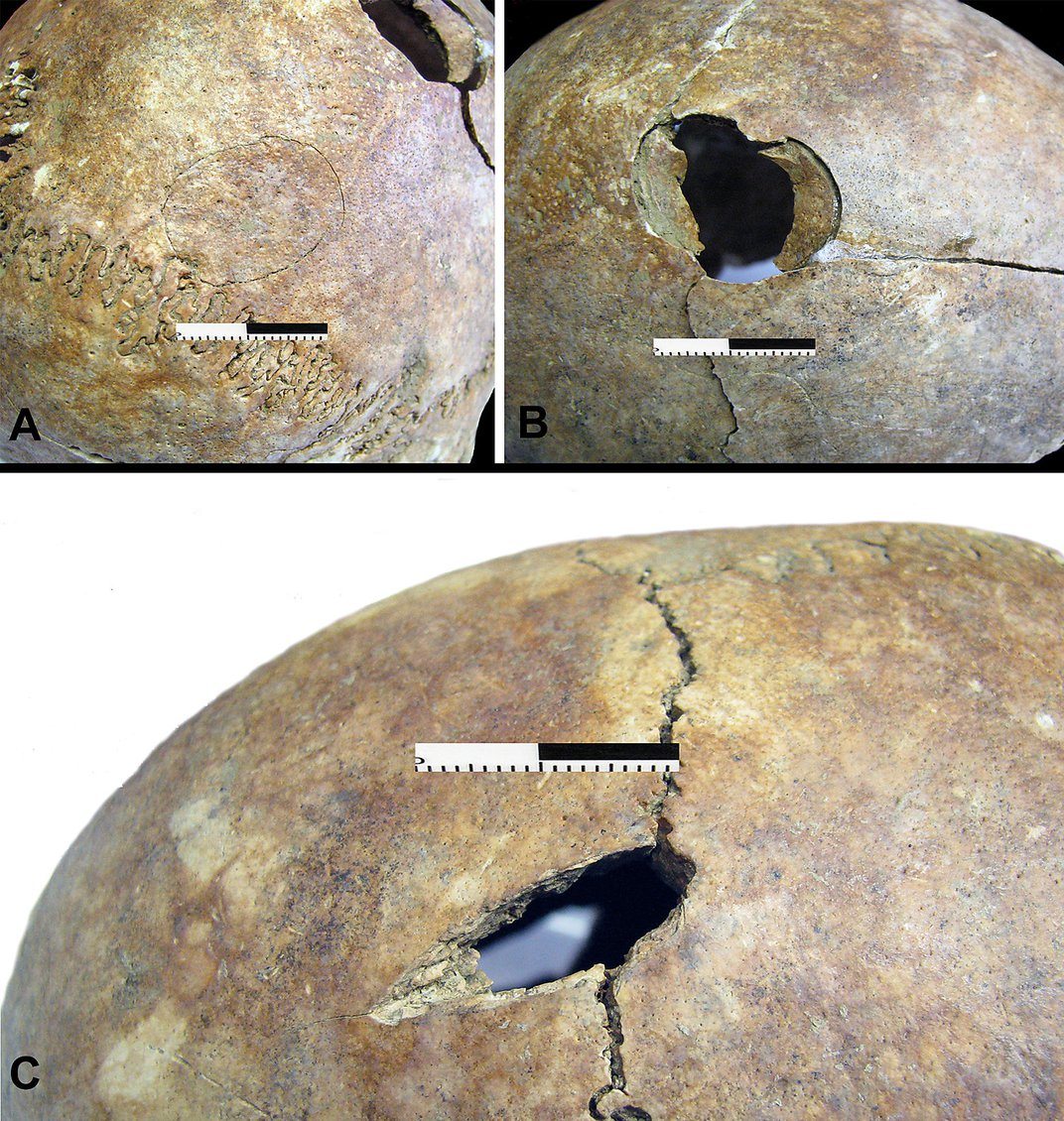 Analysis of 6,200-Year-Old Grave Raises New Questions About Neolithic Massacre