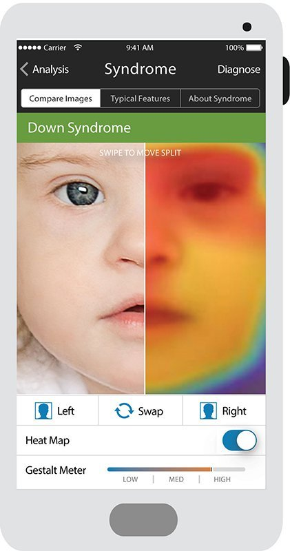 This App Uses Facial Recognition Software to Help Identify Genetic Conditions