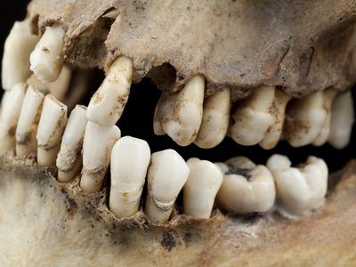 Scientists studied ancient teeth for their findings.