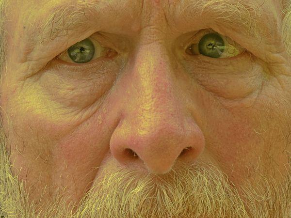 Crossed Eye - left side thumbnail