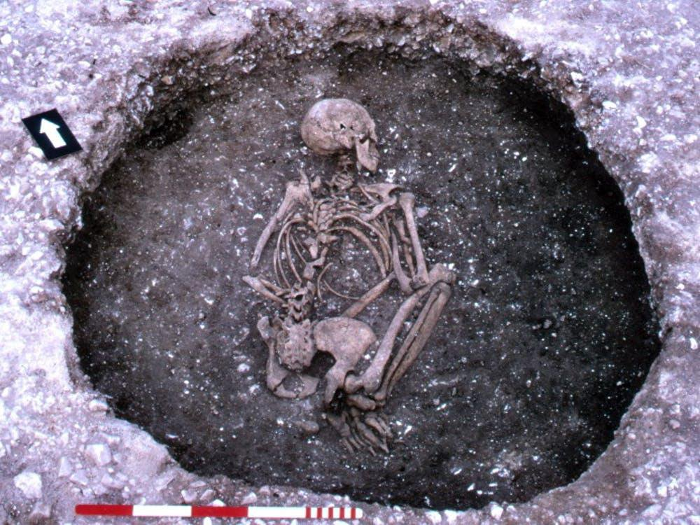 Tracking Down the Origins of Cystic Fibrosis in Ancient Europe