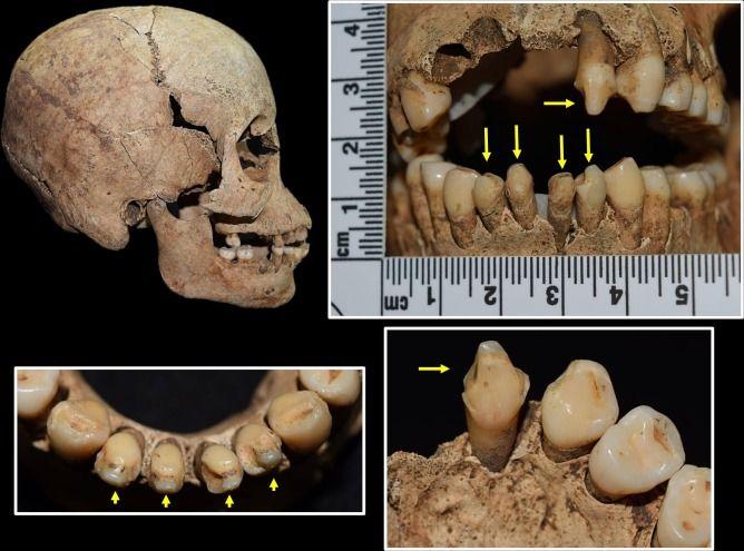 Detail of cranium and teeth